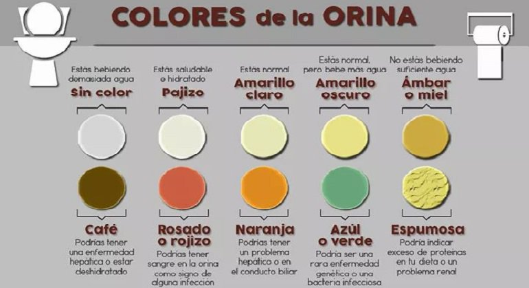 color orina