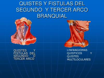 quistes_laterales_cervicales